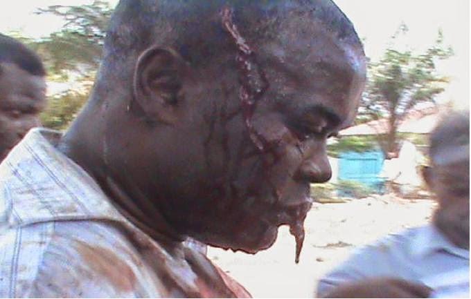 Appel pour la Liberté Congolaise