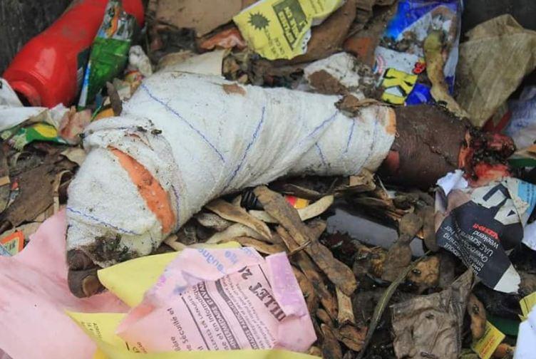 Une jambe découverte dans une poubelle à Brazzaville
