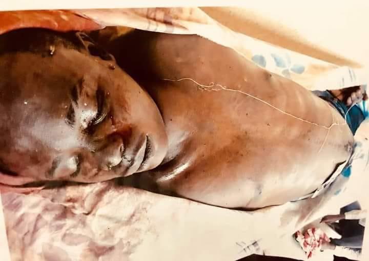 Images des jeunes assassinés au commissariat de Chacona à Brazzaville (âmes sensibles s'abstenir)