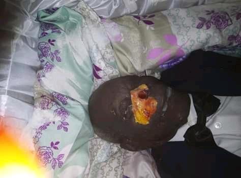 Fait insolite à la morgue municipale de Dolisie : Qui a mutilé le cadavre de M. Casimir Mboukou ?